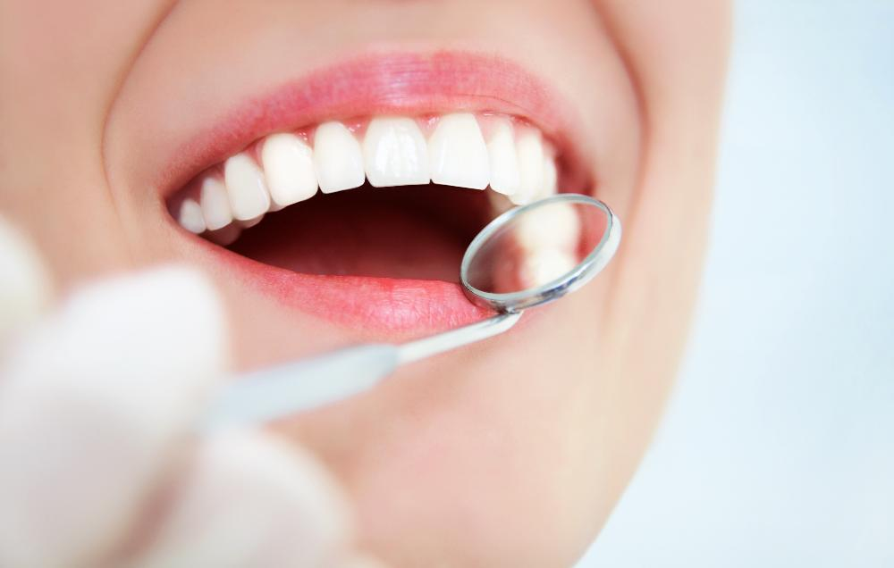 Close up of patients smile during cosmetic dentistry consultation in Winston Salem NC