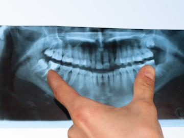 X-Ray Example | Dental Cleanings & Exams in Winston-Salem