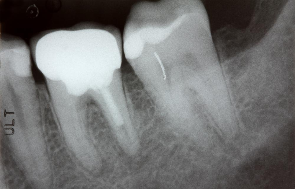X-Ray Example | Top Dentist 27103