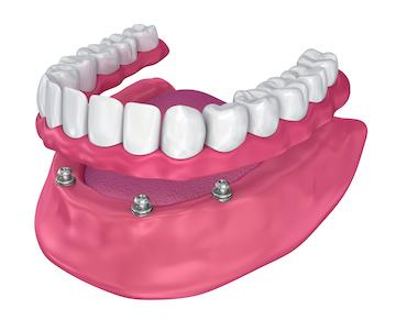 Implant supported full dentures in Winston Salem NC
