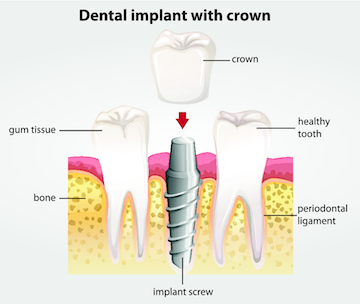 Diagram of Crowns | Smile Restorations and Tooth Repair in Winston Salem