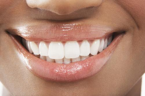 Close up of patients smile with dental fillings in Winston Salem NC